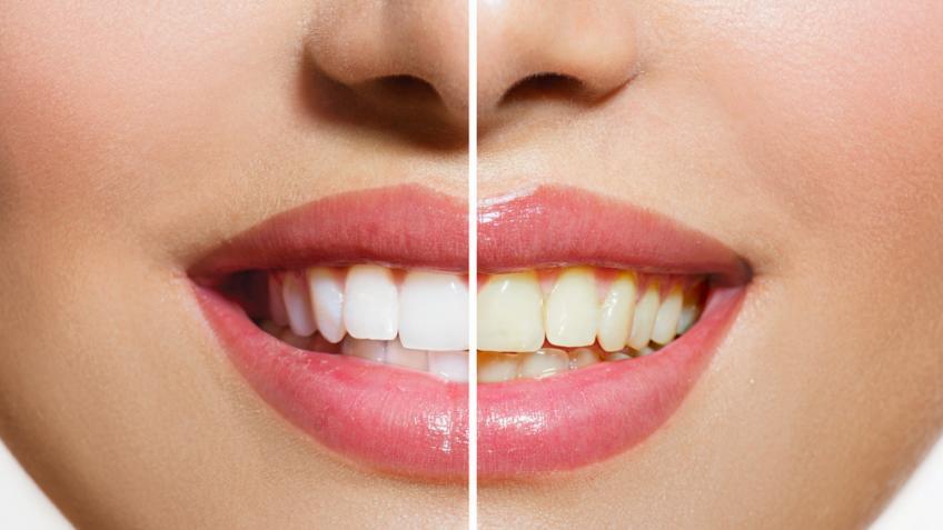 Clareamento Dental Dentista Tijuca
